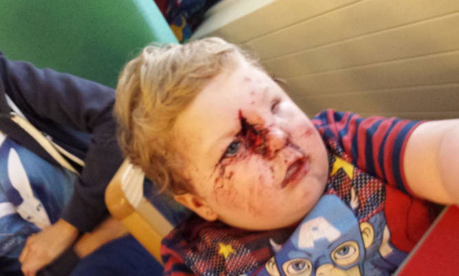 Two-year-old Ollie Cummings with the horrific injuries sustained after a dog attack.