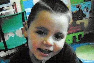 Preston Flores suffered burns to 85 per cent of his body (Hemedia)