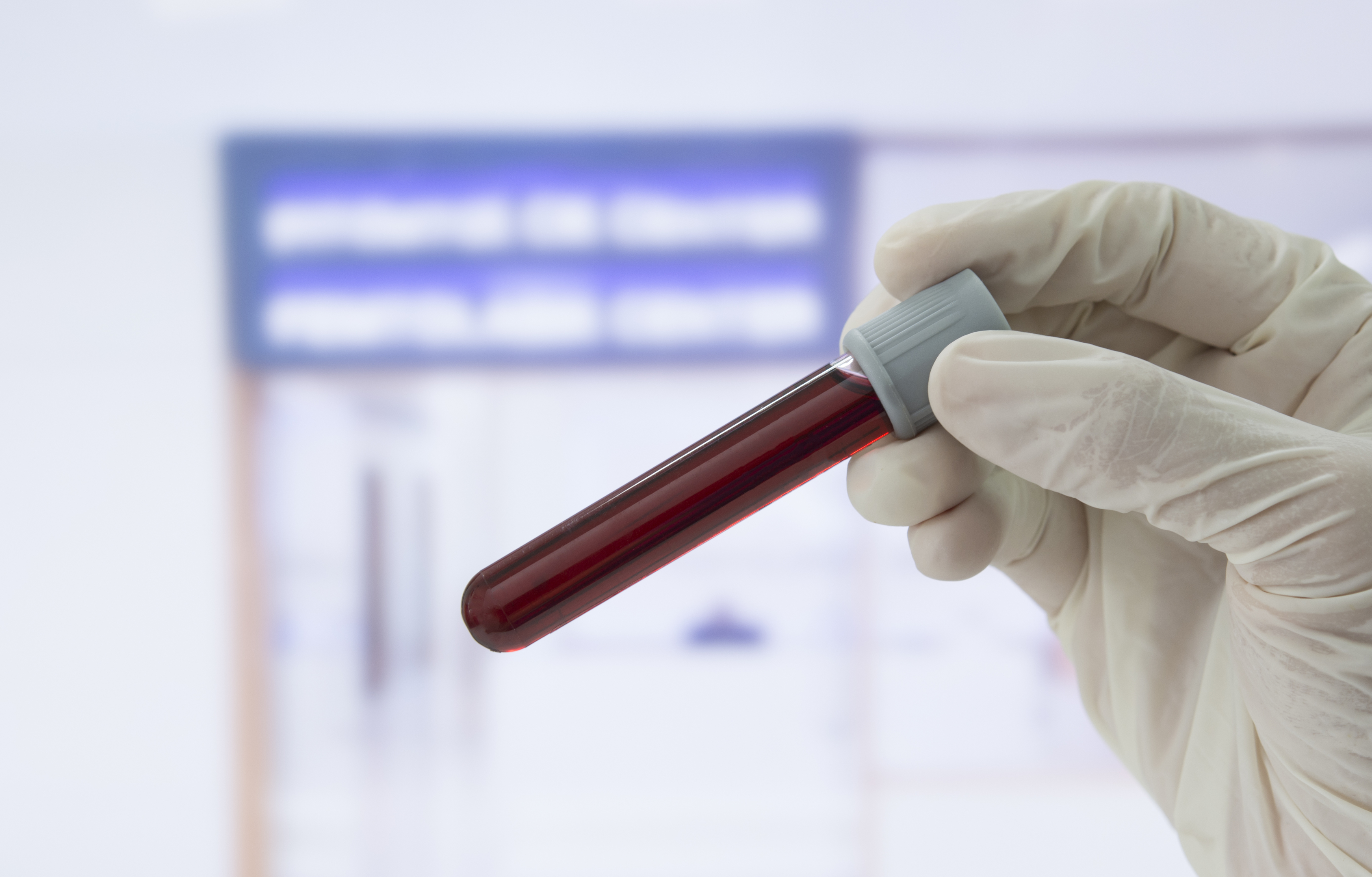 A simple blood test has been developed that detects aggressive and potentially lethal prostate cancer by identifying rare free-ranging tumour cells (iStock)