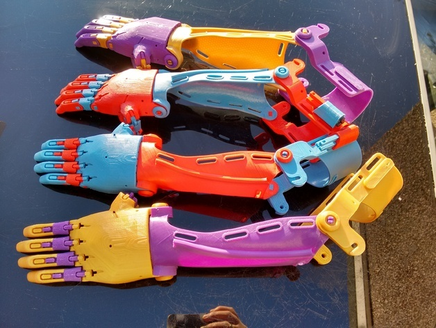Steve creates the prosthetic hands and arms for kids for free (Team Unlimbited)