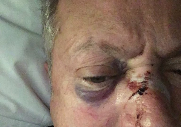 Nick Nairn appeals for information after brutal assault in Aberdeen