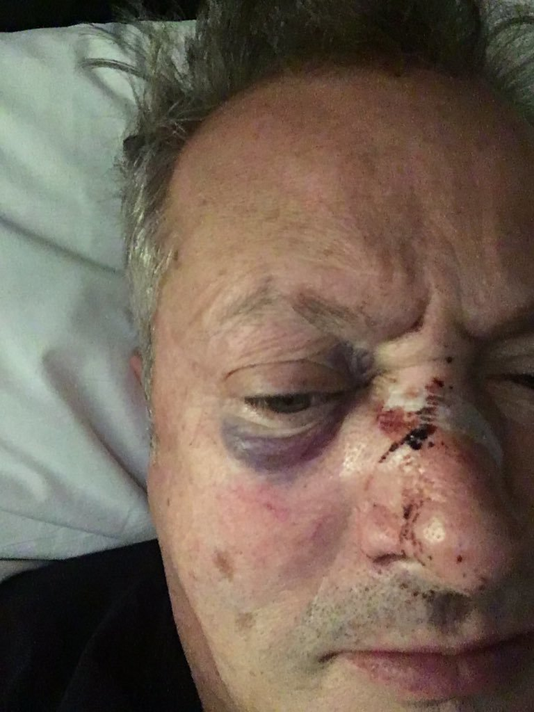 Nick Nairn shared an image of his injuries on Twitter (Nick Nairn/Twitter)