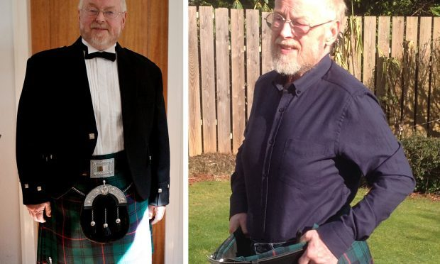 Type 2 diabetes patient, Ian Armstrong, 71, from Eaglesham, East Renfrewshire in July 2013 (left) and March 2017. Weight loss programmes for type 2 diabetes may be more effective than drugs for some patients, a new study suggests (University of Glasgow /PA Wire)