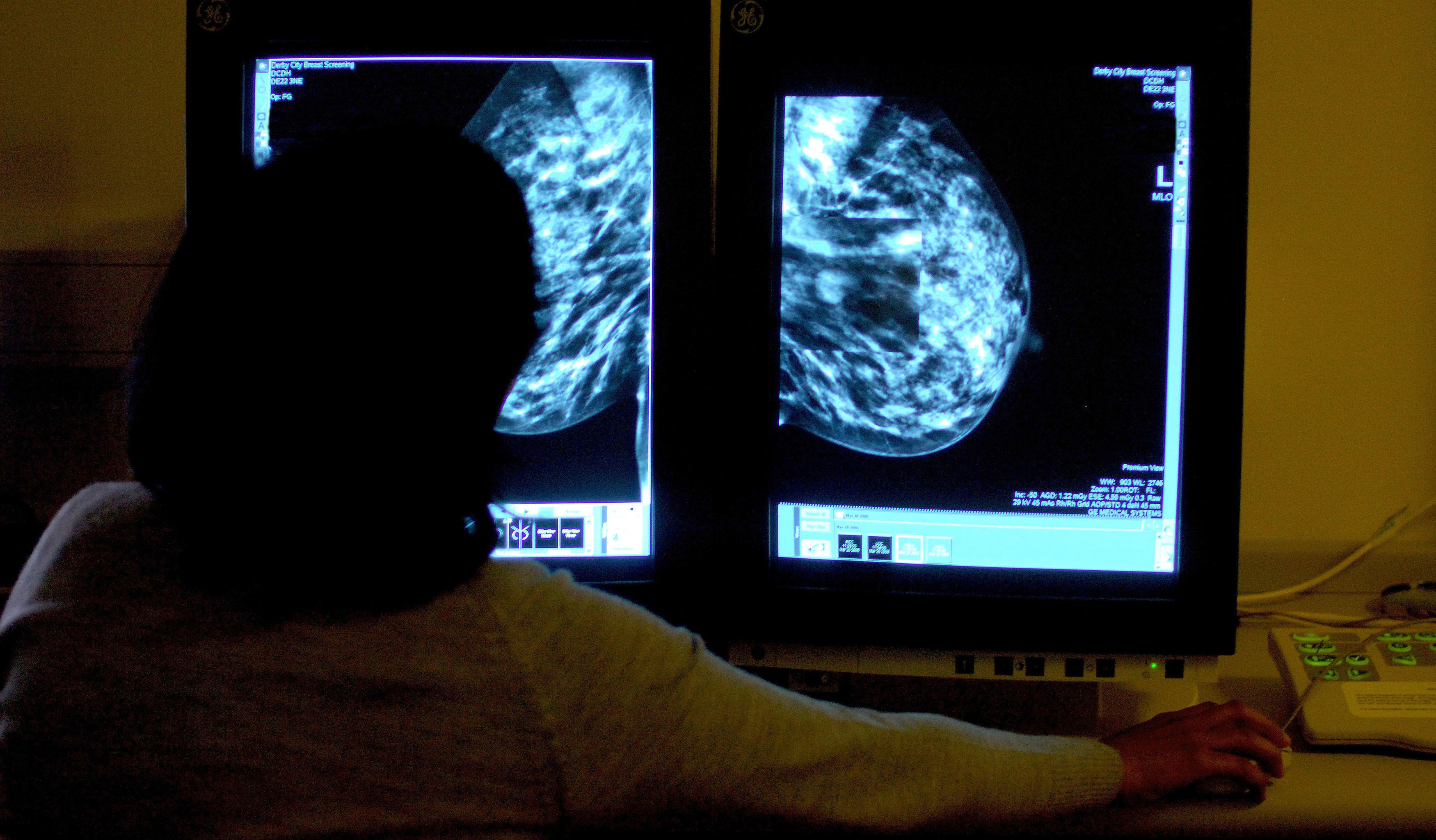 Hundreds of thousands of women were not invited for routine breast cancer screening due to an administrative error, it has been reported (Rui Vieira/PA Wire)
