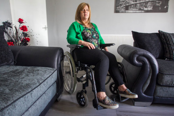 Claire Daisley at home last week as she asks ministers for help before she undergoes an irreversible operation to remove two of her organs